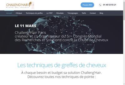 Site internet de Calvitie