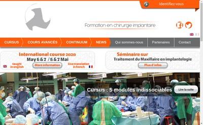 Site internet de Sapo Implant